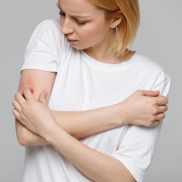 Döküntü Deri Hastalıkları Tanı ve Tedavisi