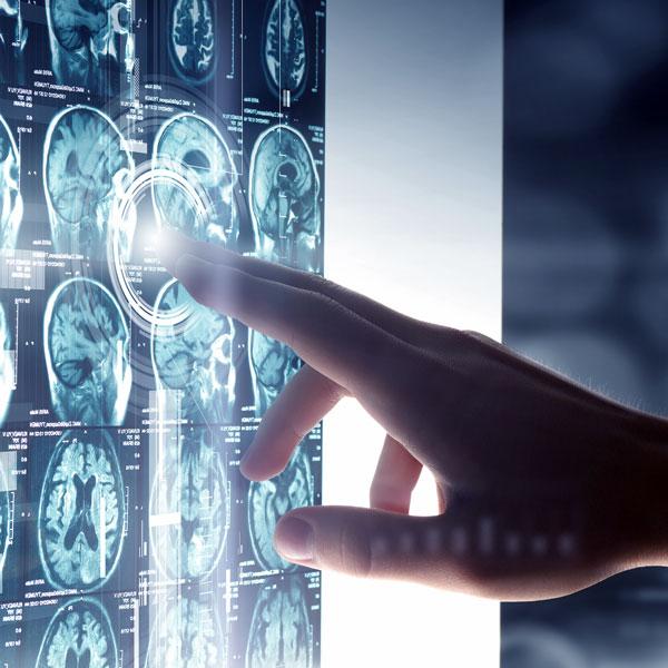 ALS (Motor Nöron Hastalığı)