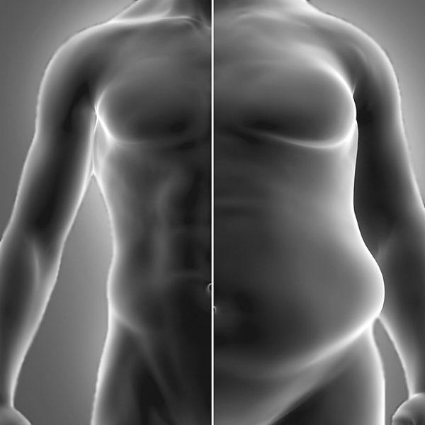 Obezite Cerrahisi