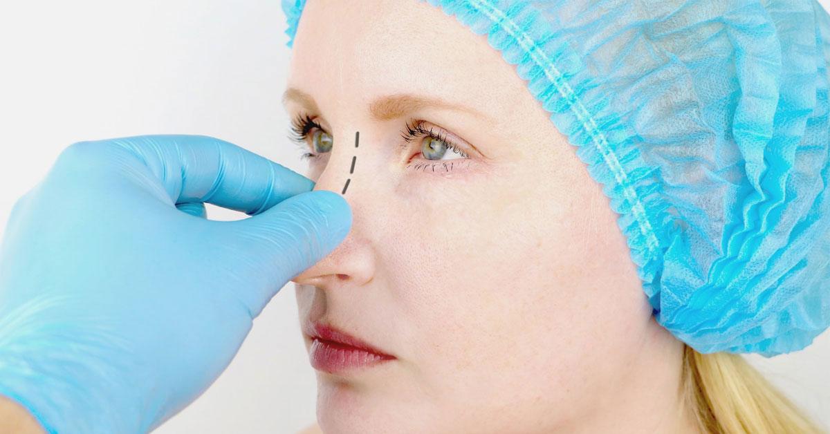 Endoskopik Septoplasti Nedir?